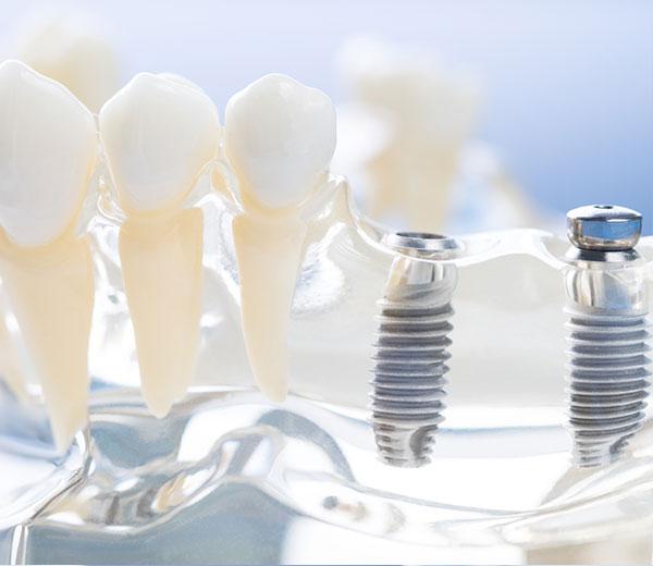 dres schirmer zahnarzt schifferstadt zahnimplantate behandlungspektrum